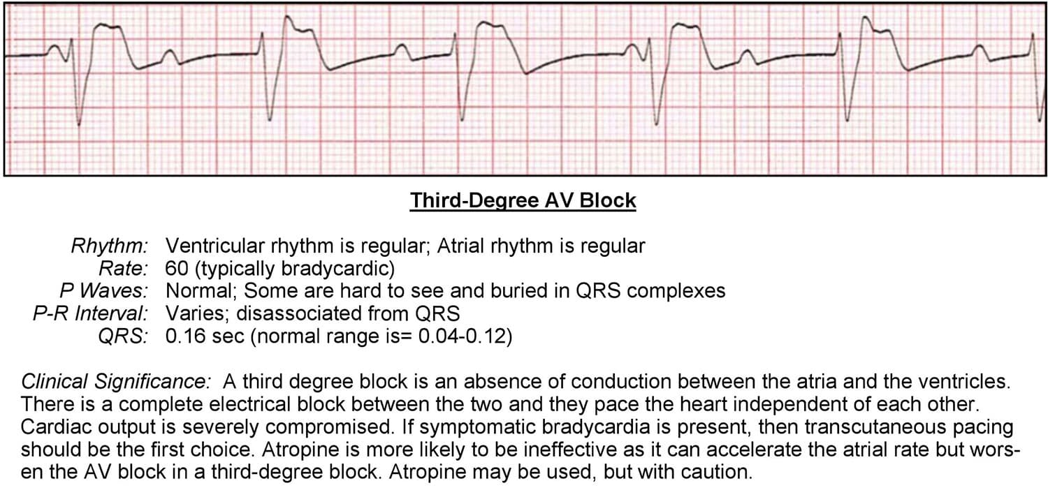 Third Degree AV Block ECG