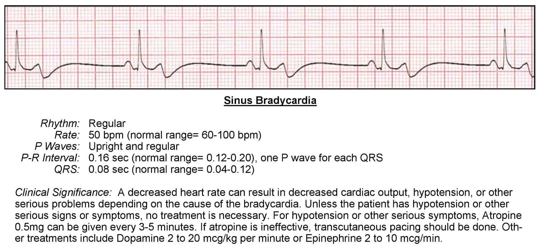 Bradycardia ECG