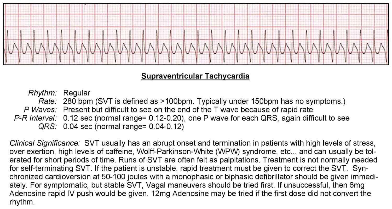 Supraventricular Tachycardia ECG