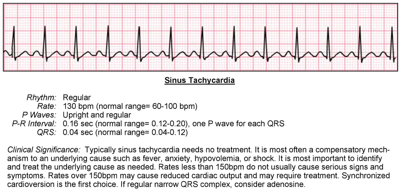 Tachycardia ECG