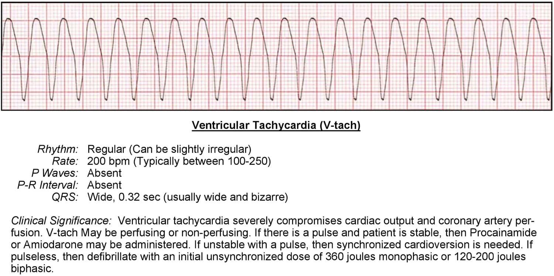 Ventricular Tachycardia (V-tach) ECG